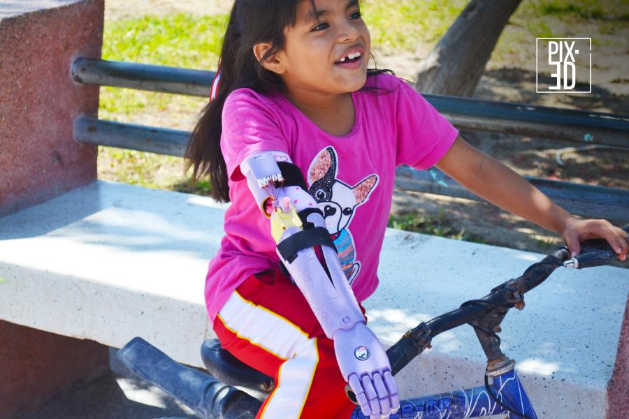 ¿Cómo fomentar la autonomía en los niños con discapacidad física?